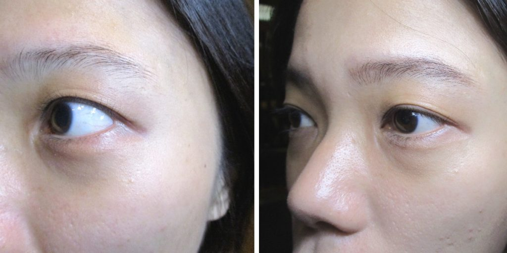 A before and after shot. My left eye pictured before the treatment (left) and after (right).
